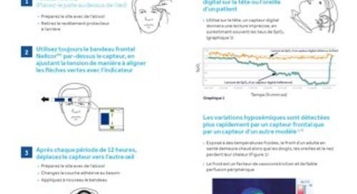 NELLCOR - GUIDE D'APPLICATION DU CAPTEUR FRONTAL DE SPO2 (MAXFAST) AVEC TECHNOLOGIE OXIMAX