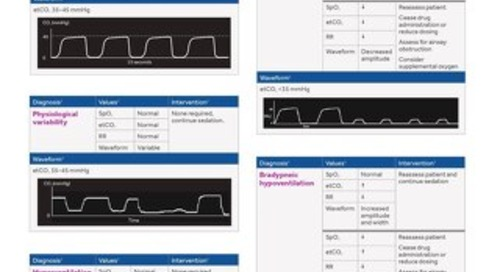 CAPNOGRAPHY DURING PROCEDURAL SEDATION