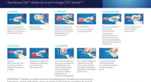 - Agrafeuse GIA dotée de la technologie DST Series