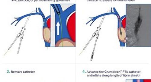 Guide: Chameleon Fibrin Sheath Disruption Procedure
