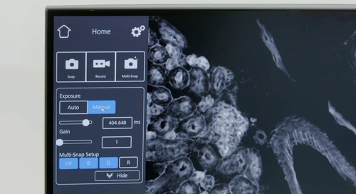 How-to Video: Acquire Multichannel Fluorescence Images with Smart Microscopy
