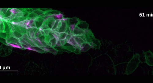 Zebrafish embryo imaged with ZEISS Celldiscoverer 7 and LSM 900