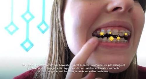 Journal 2: L'appareil d'orthodontie DE POINTE Clarity(MC) résiste aux taches