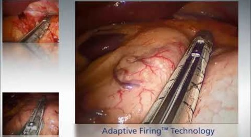 Tri-StapleTM Adaptive Firing Demo