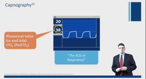Use of Capnography in the post-operative and general care setting.
