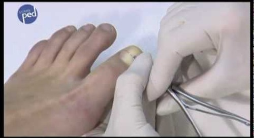 COMBIped Nail Bracing System
