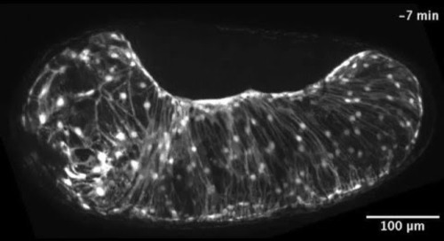ZEISS ApoTome: Tribolium extraembryonic tissue rupture and withdrawal