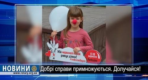 """Ротарі дайджест: """"Червоні носики"""" на придбання ендоскопу для інституту раку"""