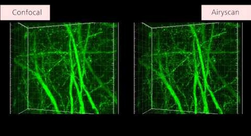 ZEISS LSM 880 with Airyscan: Mouse brain sections