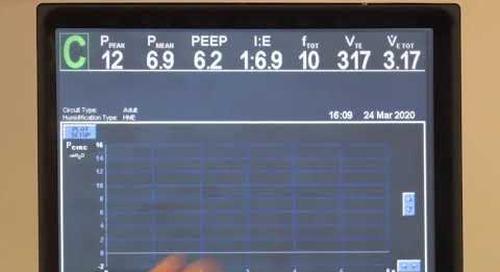 Puritan Bennett 840 Ventilator - GUI Navigation Patient Data