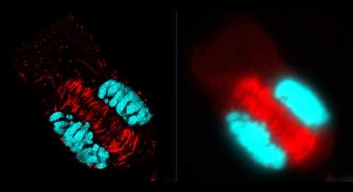 ZEISS ELYRA: Comparison between SR-SIM & widefield microscopy