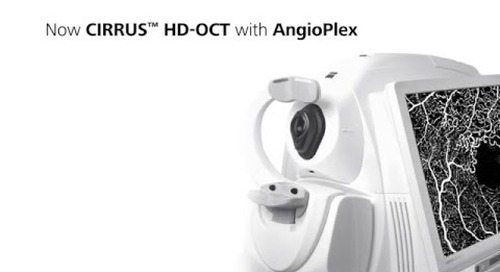 Introducing ZEISS AngioPlex: Making the Revolutionary Routine
