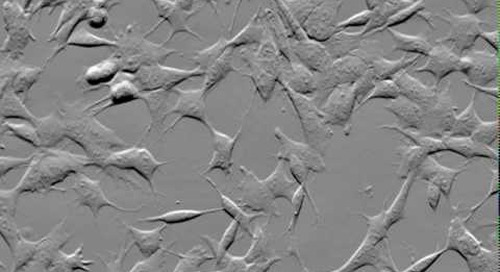 ZEISS Celldiscoverer 7: Brain cells in culture, 72 hours time-lapse microscopy