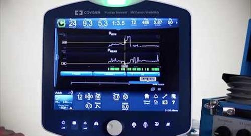 Puritan Bennett 980 Ventilator - Clinical - Trending