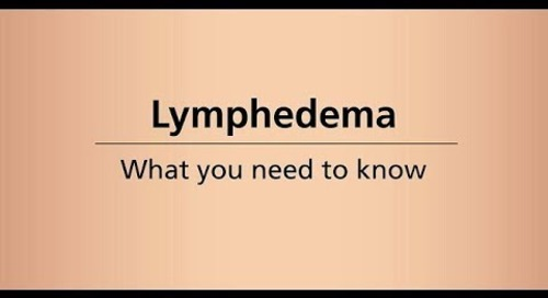 Beyond Cancer Treatment - Lymphedema