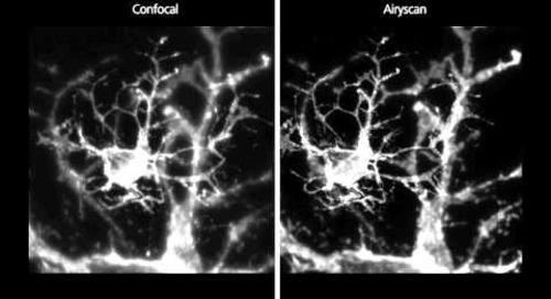 ZEISS LSM 880: Oligodendrocyte with Airyscan
