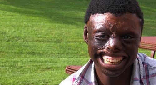 African Burn Survivor Jespa Awomah Finds Hope, Education in California