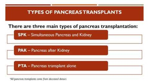 Pancreas Transplant Education   Providence Sacred Heart Kidney & Pancreas Transplant Program