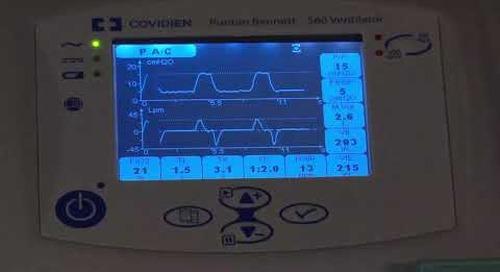 Puritan Bennett 560 Ventilator - Waveform