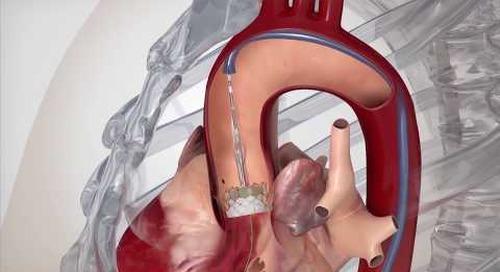 HealthBreak | MT | Structural Heart Program