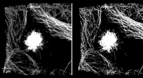 ZEISS LSM 880: Mitosis in tumor cells with Airyscan (SR mode)