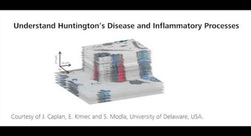 ZEN Correlative Array Tomography: Investigating Huntington's Disease