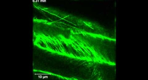 ZEISS LSM 880: Arabidopsis root growth, GFP
