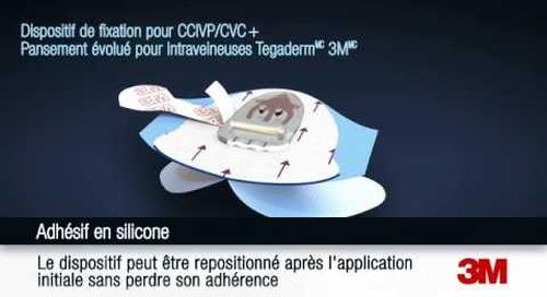 Application et retrait du Dispositif de fixation pour intraveineuses Tegaderm(MC) 3M(MC)