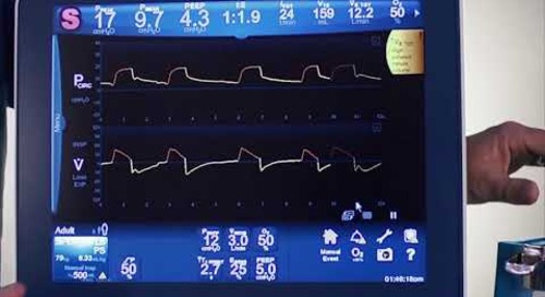 Puritan Bennett 980 Ventilator - Clinical - Adult Noninvasive Ventilation (NIV)