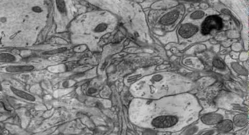 ZEISS ATLAS for FE-SEM and FIB-SEM - Mouse Brain Tissue