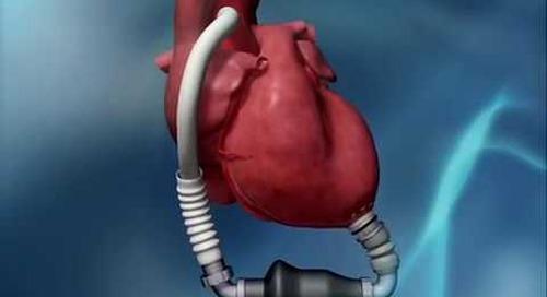 HeartMate II LVAD Animation