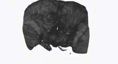 ZEISS Xradia Versa: 3D X-ray microscopy of adult Drosophila brain