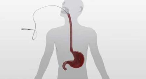Barrx 360 RFA Balloon Catheter Animation