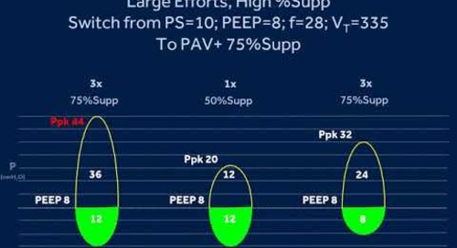 PAV+ For Prolonged Weaning Protocol: Video 5