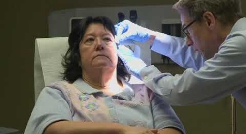 Saint Patrick HealthBreak - Skin Cancers