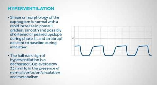 Principles of Capnography : Waveforms