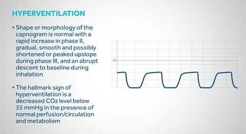 Principles of Capnography : Waveforms