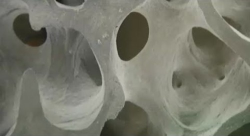 KPTV Osteoporosis McClung