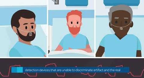 Smart Capnography Algorithms: Smart Breath Detection