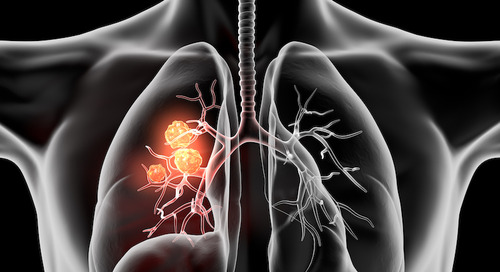 Company appointed Doctor told black lung sufferer he had bronchitis