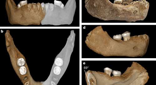 A late Middle Pleistocene Denisovan mandible from the Tibetan Plateau