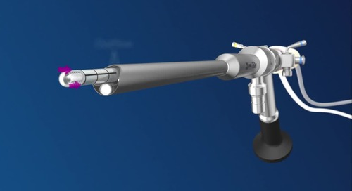 Animation Video: TruClear™ Hysteroscopic Tissue Removal System