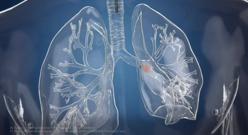 Lung Health Mission Video