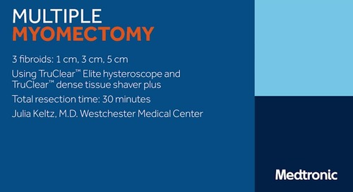 Video: TruClear Elite Multiple Myomectomy
