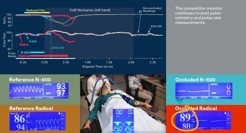 Video: Nellcor™ Pulse Oximetry Product Comparison