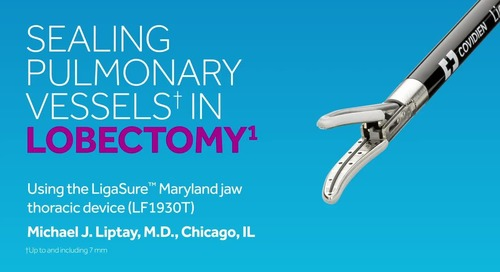 Video: LigaSure™ Maryland Jaw Thoracic Device: Sealing Pulmonary Vessels in Lobectomy
