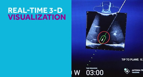 Emprint™ SX Ablation Platform with Thermosphere™ Technology Video