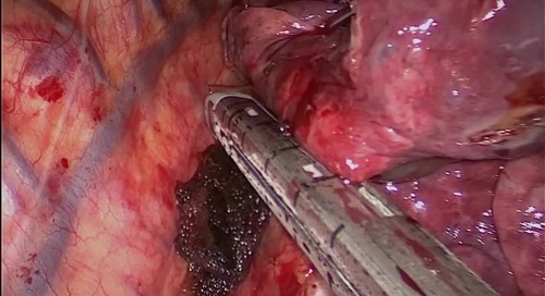 Video: The Advantages of VATS Lobectomy