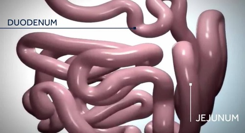Educational Video: Bariatric Roux-En-Y Gastric Bypass