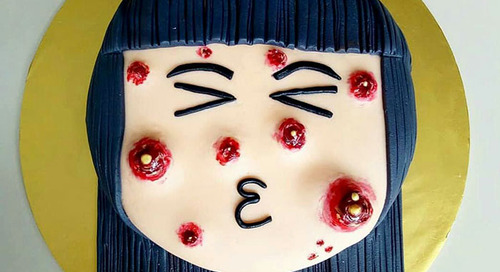 Siapa Ingin Coba Kue Berjerawat Ini?